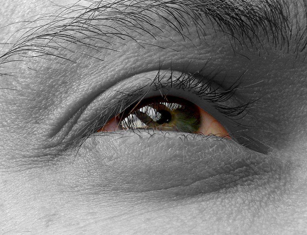 an elusive eye diagnosis